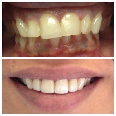 front-teeth-veneers