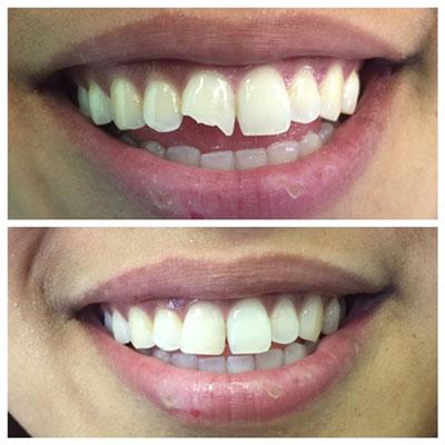 front-teeth-veneers_0
