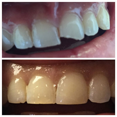 front-teeth