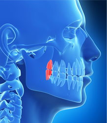 dental implants for a perfect smile