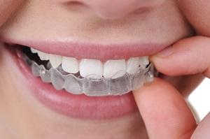 dental invisalign edit